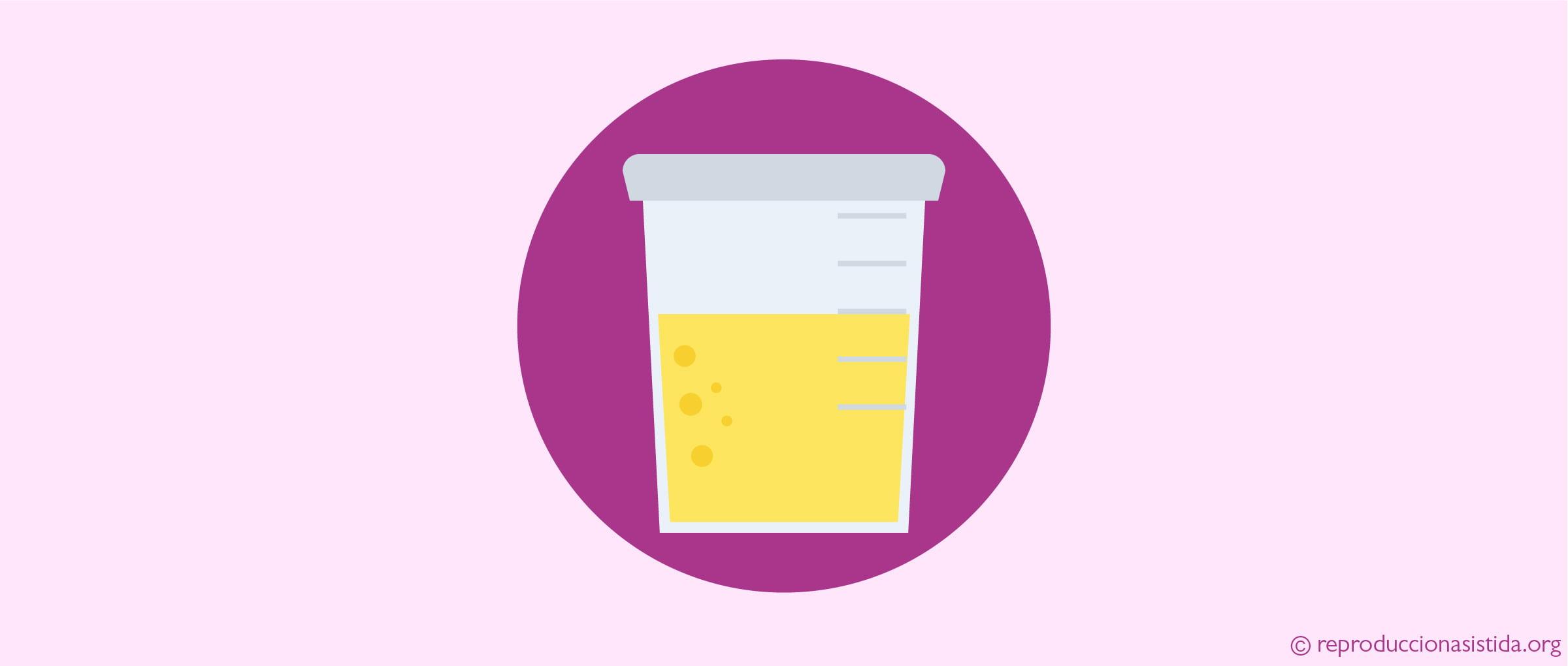 Líquidos e infecciones de orina