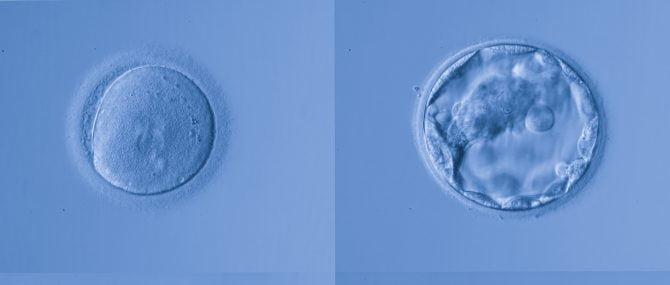 Imagen: Óvulos fecundados y preembriones