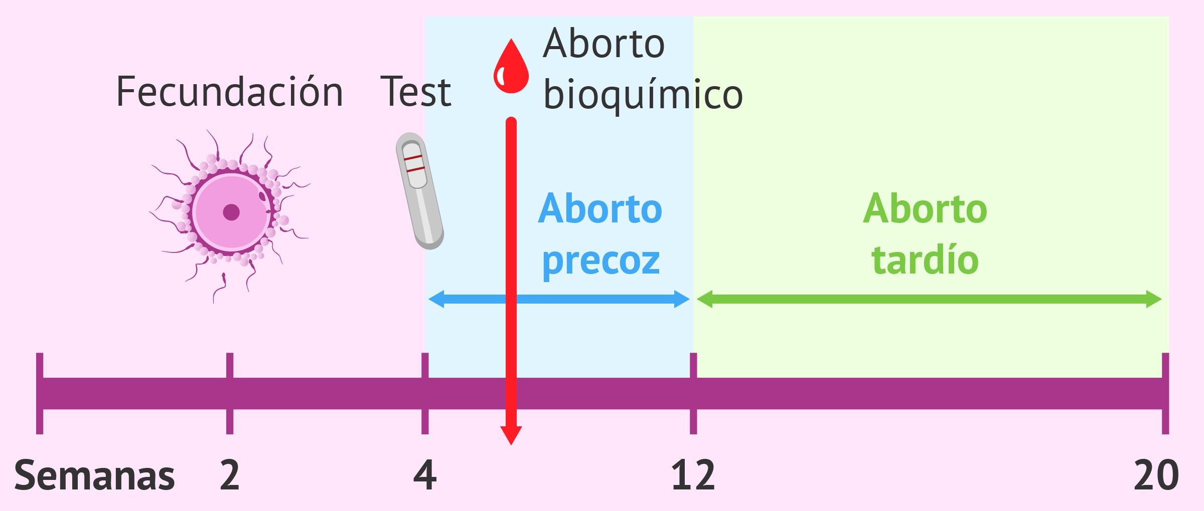 Tipos de aborto espontáneo