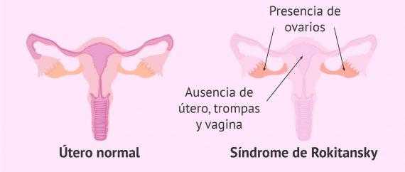 Agenesia vaginal: ausencia de útero