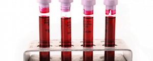 Análisis sangre para detectar niveles de ARN