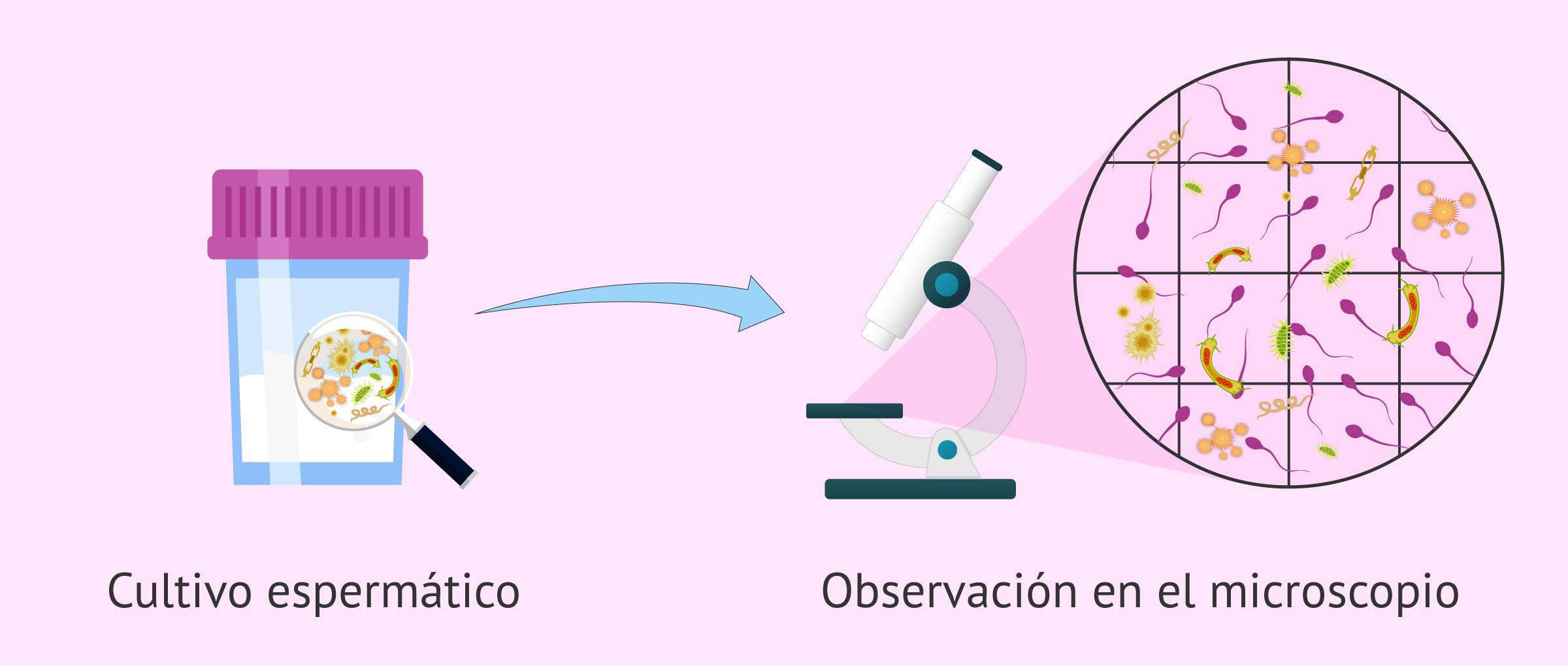 Espermocultivo positivo: bacterias en cultivo de semen