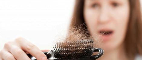 Caída de cabello en el posparto