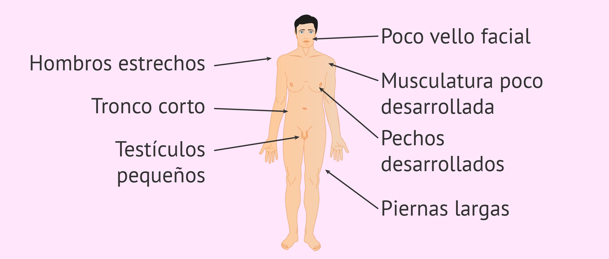 Síndrome de Klinefelter: síntomas característicos y tratamiento
