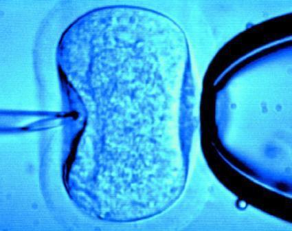 Se ha desarrollado una nueva técnica de reproducción asistida que mide los niveles de fragmentación del ADN de los espermatozoides