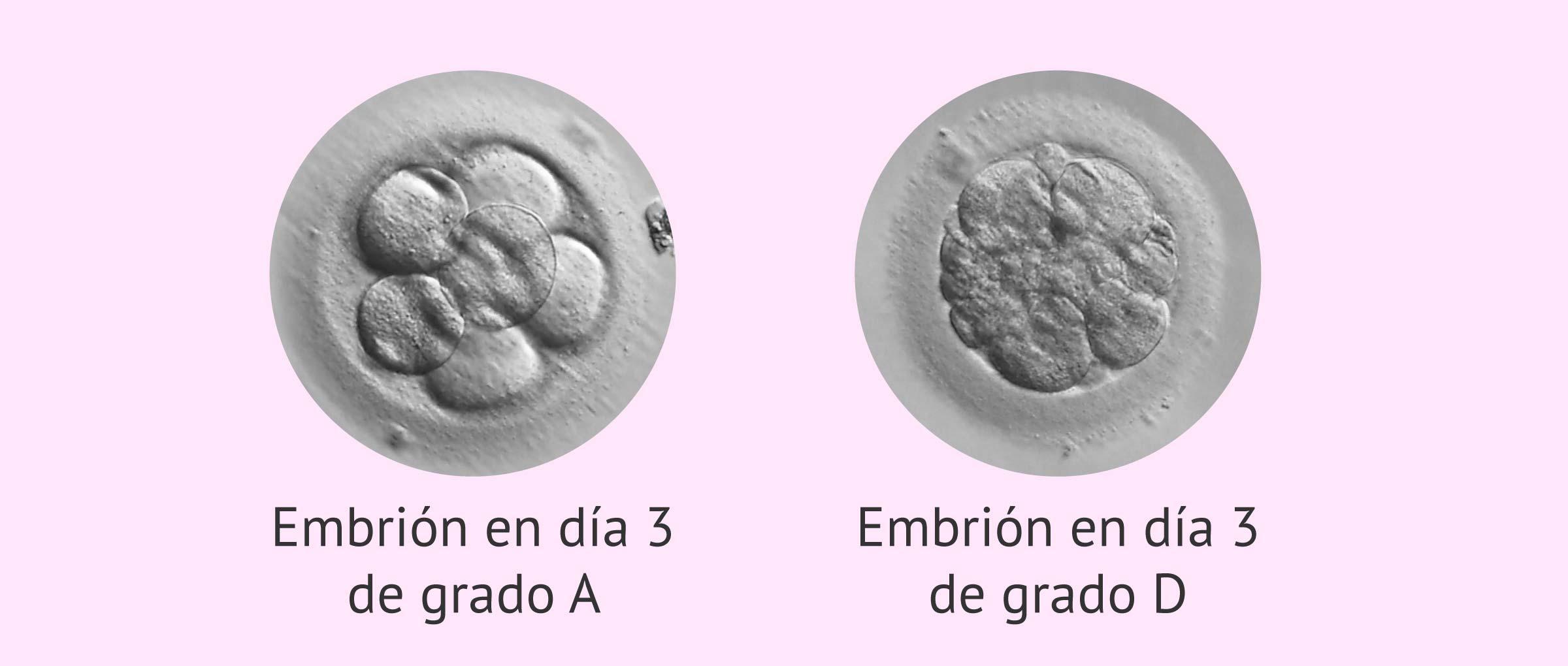 Clasificación de los embriones en día 3 de desarollo
