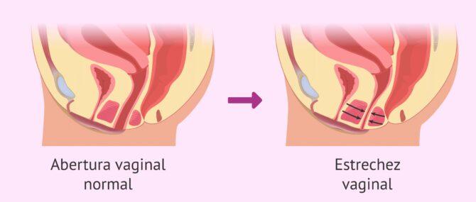 Imagen: El vaginismo y la dispareunia pueden ser recíprocos