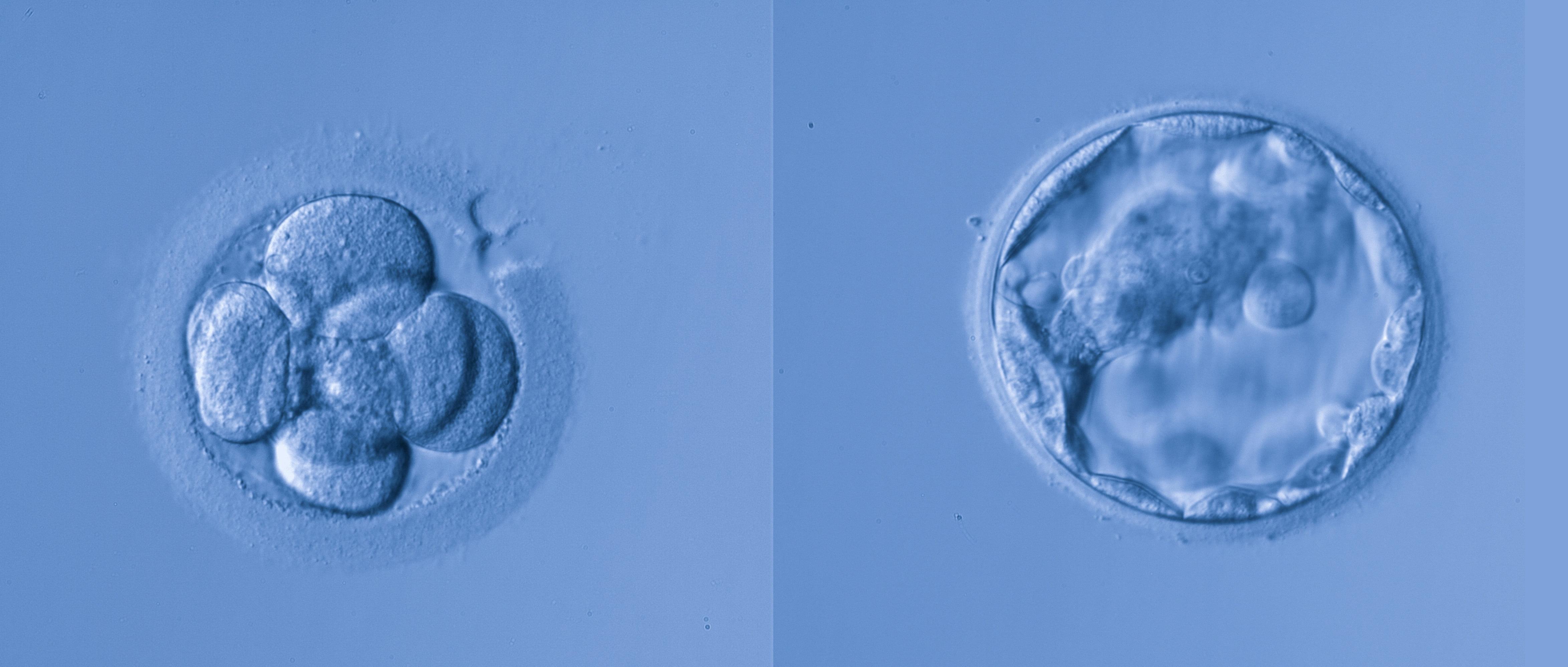 Embriones de buena calidad