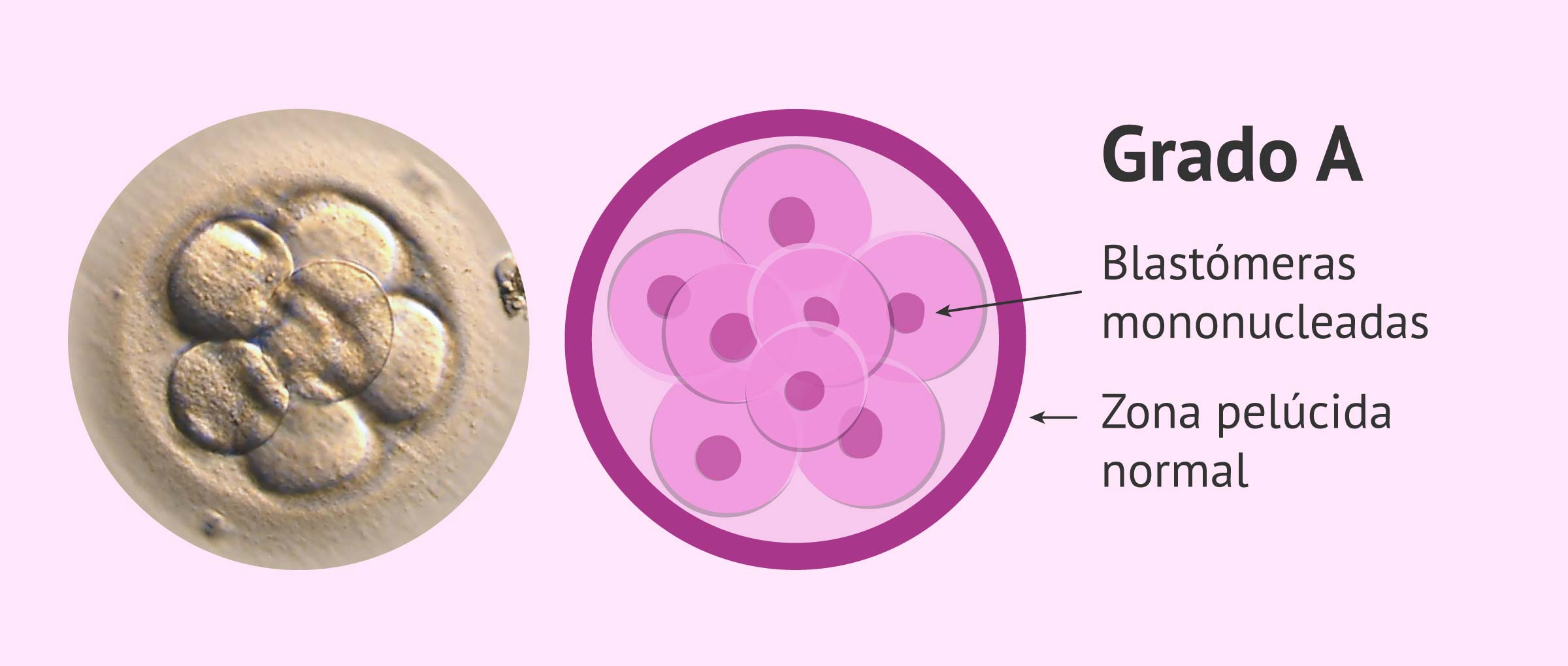 Calidad embrionaria: grado A