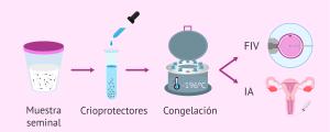Criopreservación espermática