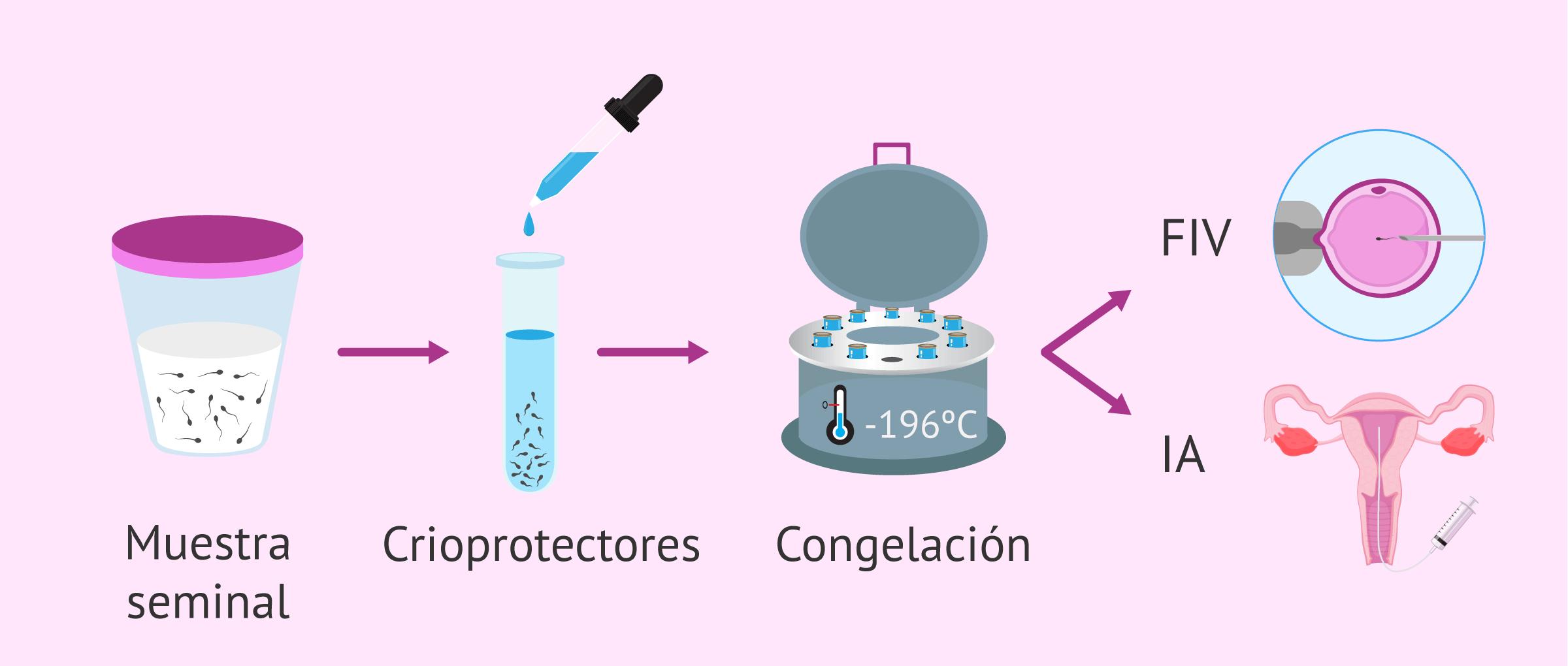 Congelación de esperma: indicaciones, proceso y resultados