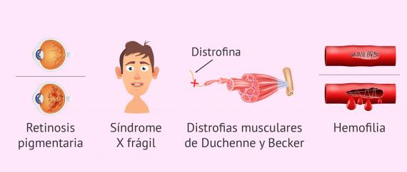 Enfermedades ligadas al sexo