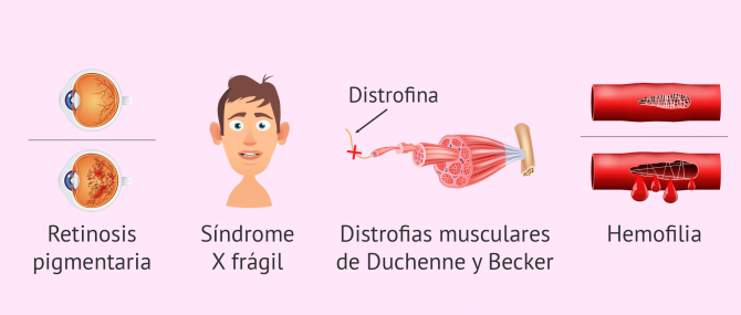 Imagen: Enfermedades ligadas al sexo