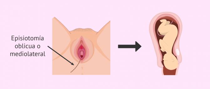 Imagen: Episiotomía