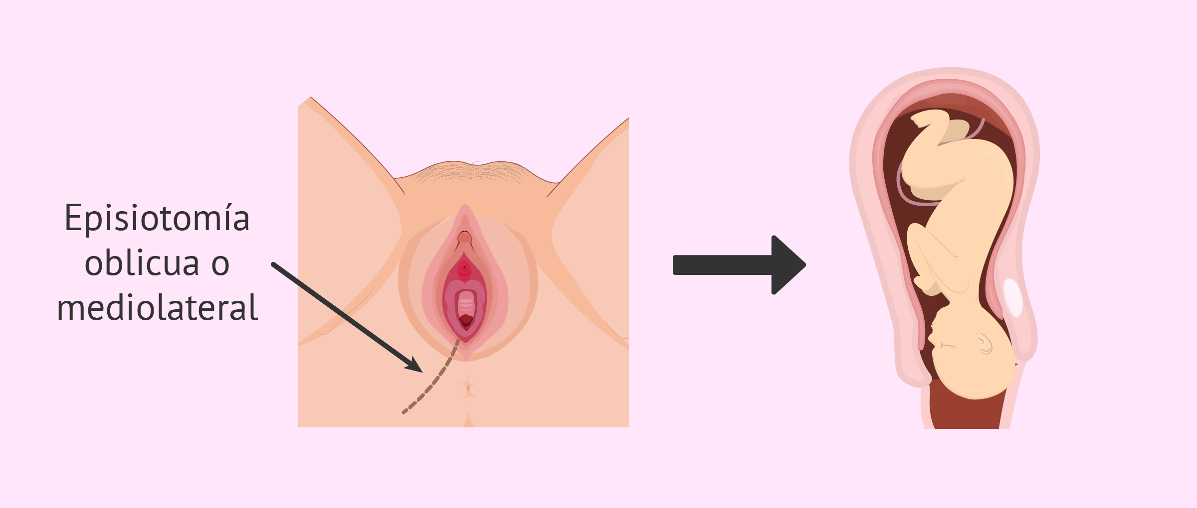 ¿Qué es la episiotomía y cómo puedo prevenirla en el parto?