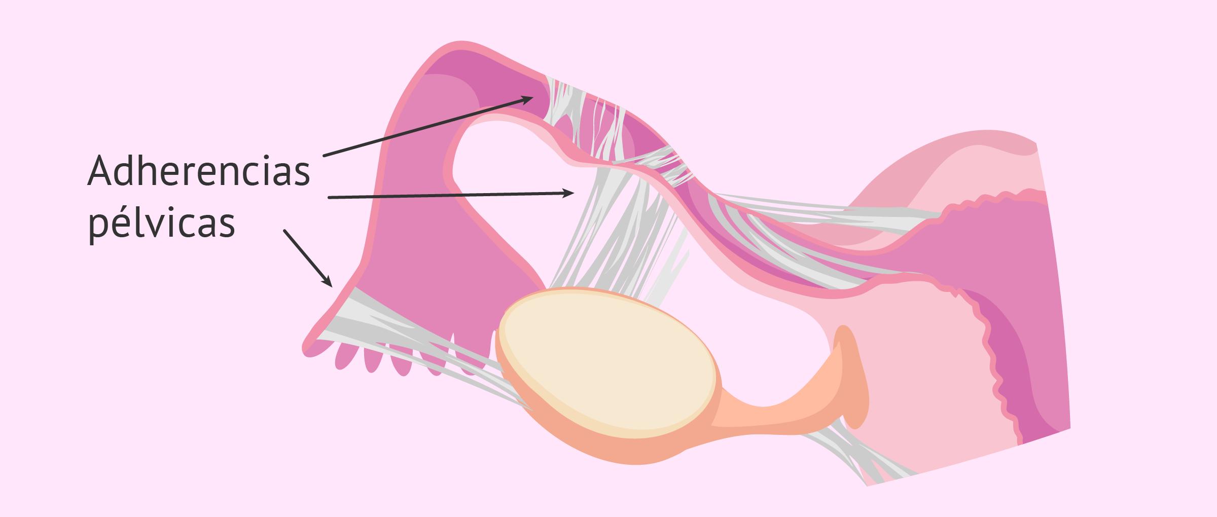 Obstrucción de trompas de Falopio: causas, diagnóstico y tratamiento