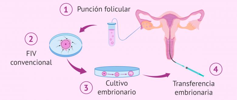 Fecundación in vitro convencional