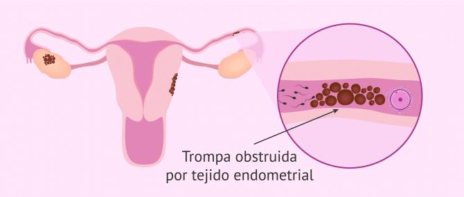 Imagen: Esterilidad femenina por endometriosis
