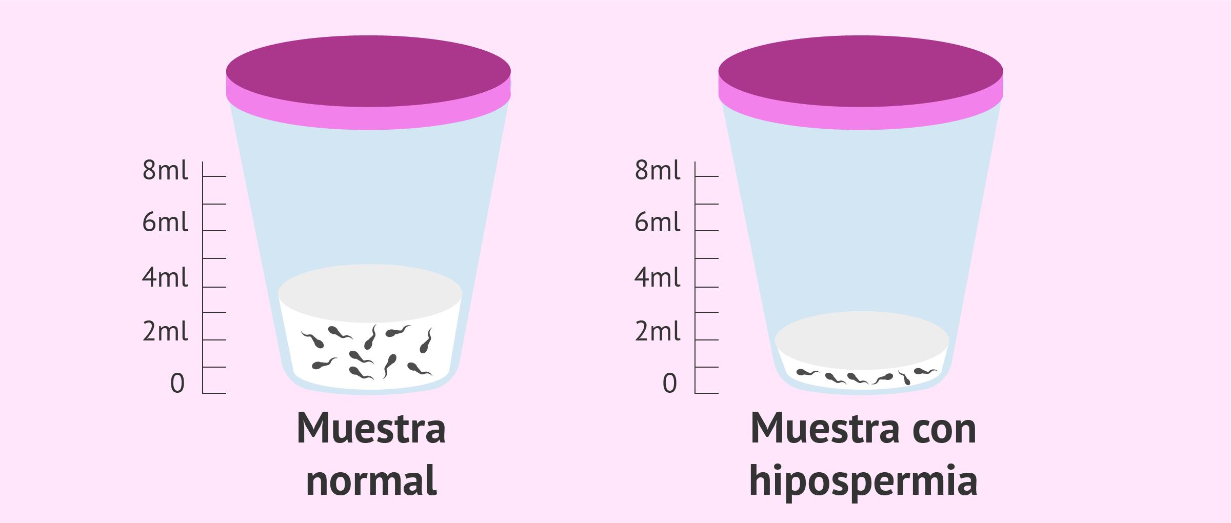 Bote estéril de muestras