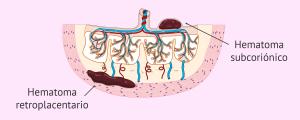 Hematoma interdeciduotrofoblástico