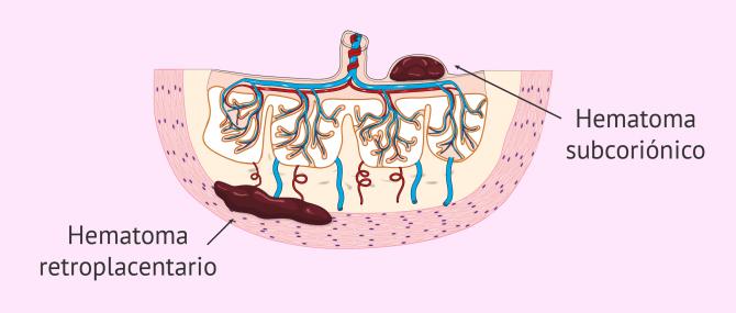 Imagen: Hematoma interdeciduotrofoblástico