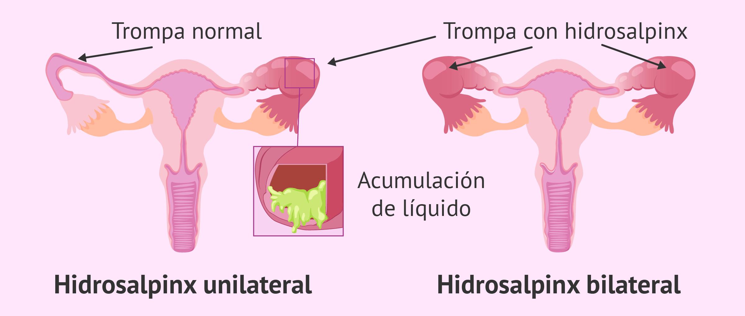 Inflamación de las trompas