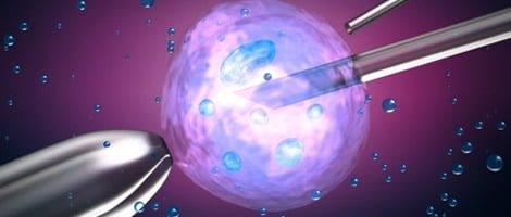 FIV Recoletos Clínica de reproducción asistida