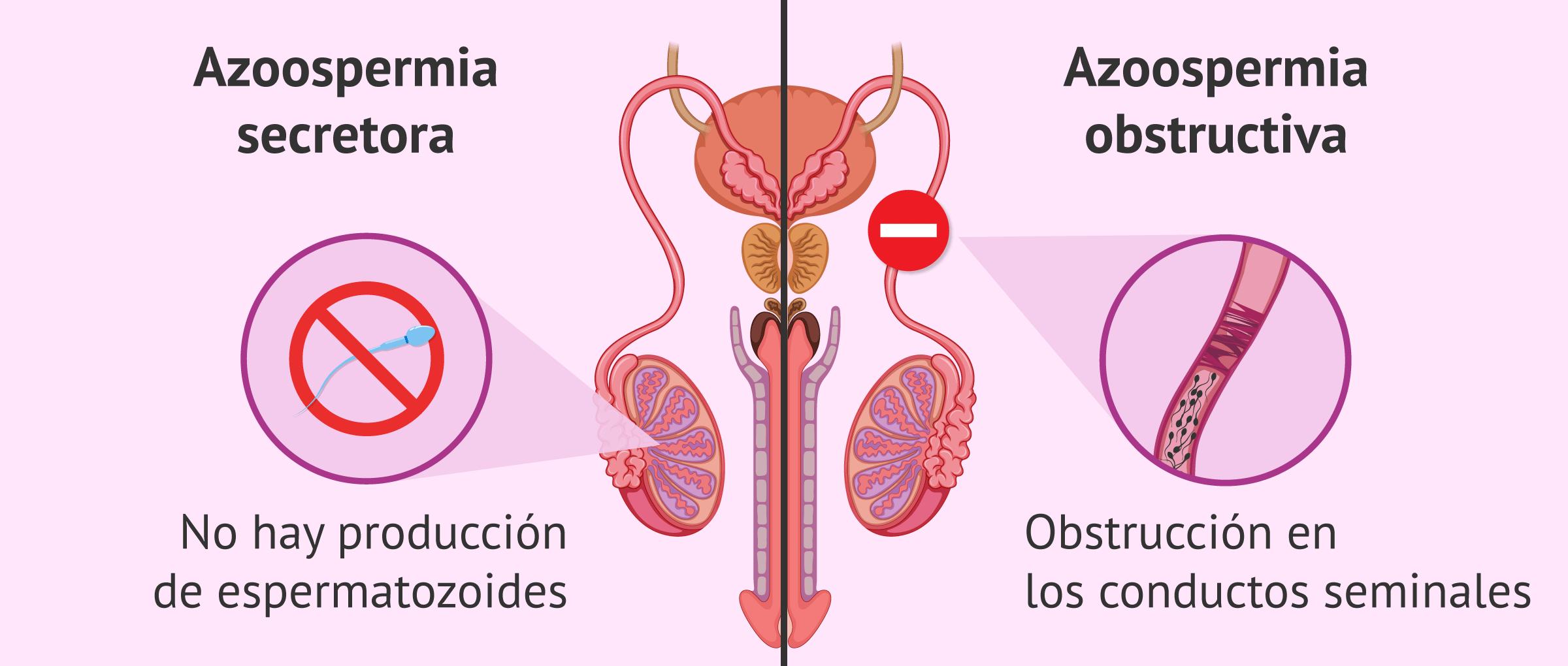 Diferencia entre los tipos de azoospermia