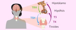 Problemas de tiroidismo
