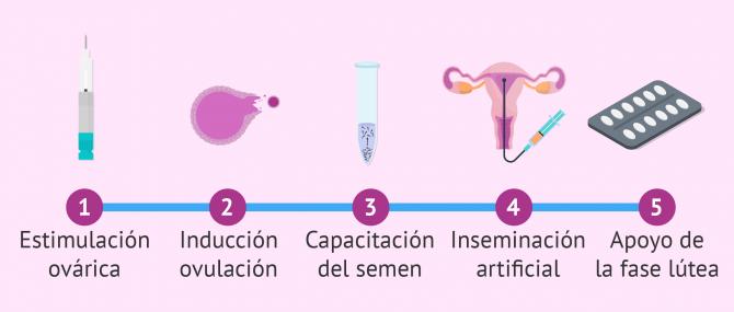La inseminación artificial (IA): ¿Qué es y cuál es su precio?