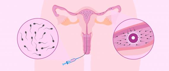 La inseminación artificial intrauterina