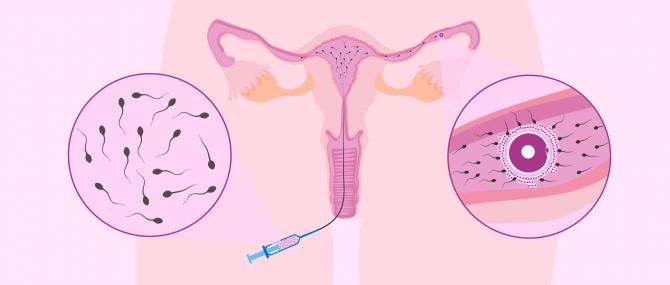 Imagen: La inseminación artificial intrauterina
