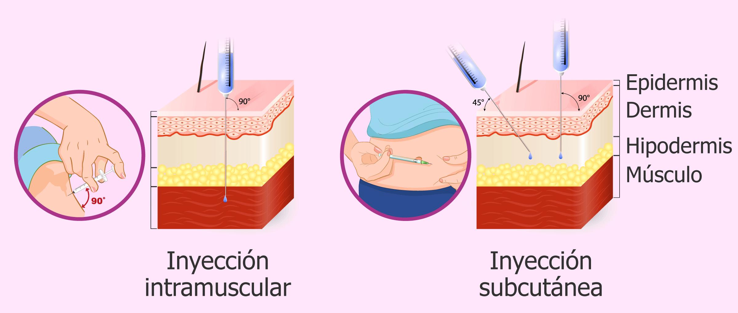 Tipos de inyección de Decapeptyl: intramuscular (mensual) y subcutánea (diaria)