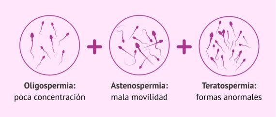 Imagen: La oligoastenoteratospermia