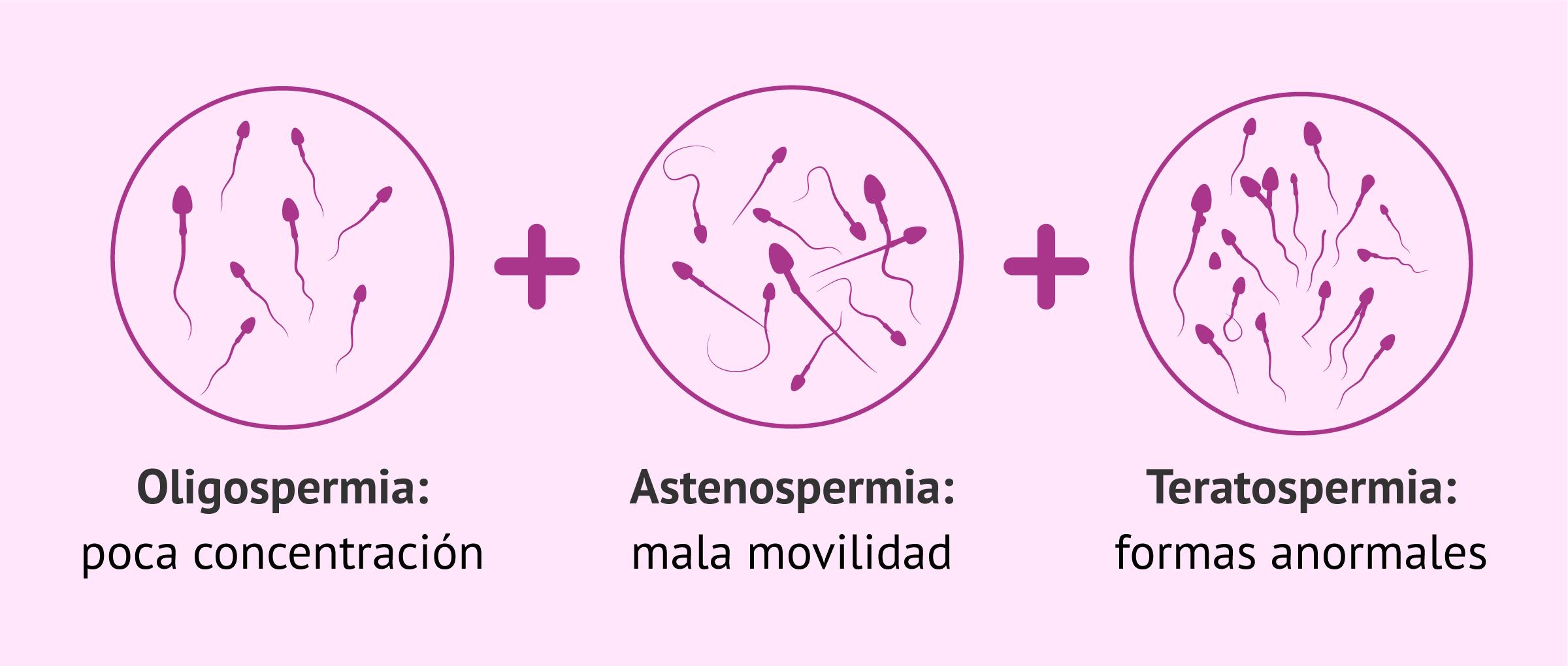 Oligoastenoteratospermia: tratamiento y cómo conseguir el embarazo