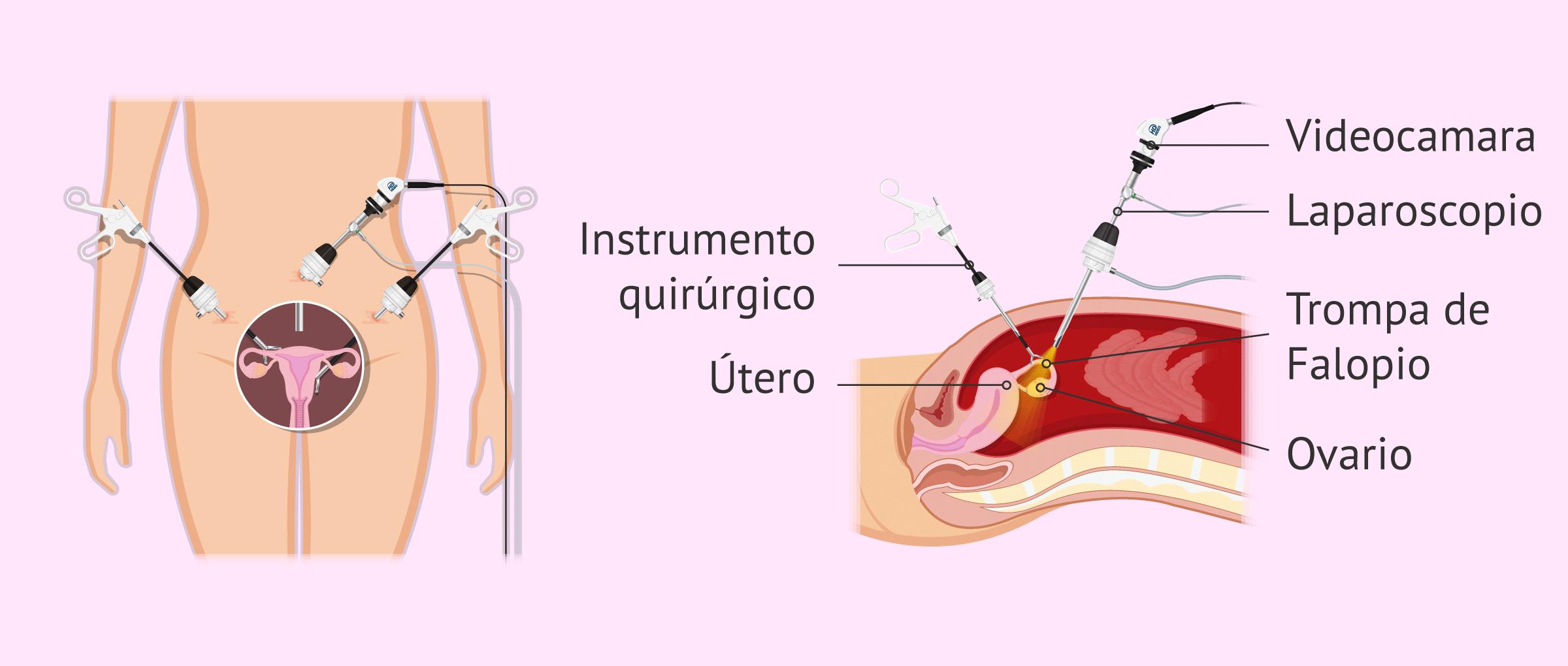 Vista frontal-lateral de una laparoscopia