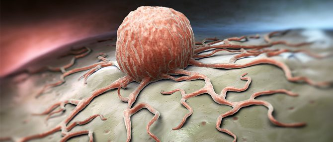 Imagen: Las células cancerígenas puedan afectar al feto a traves de la placenta