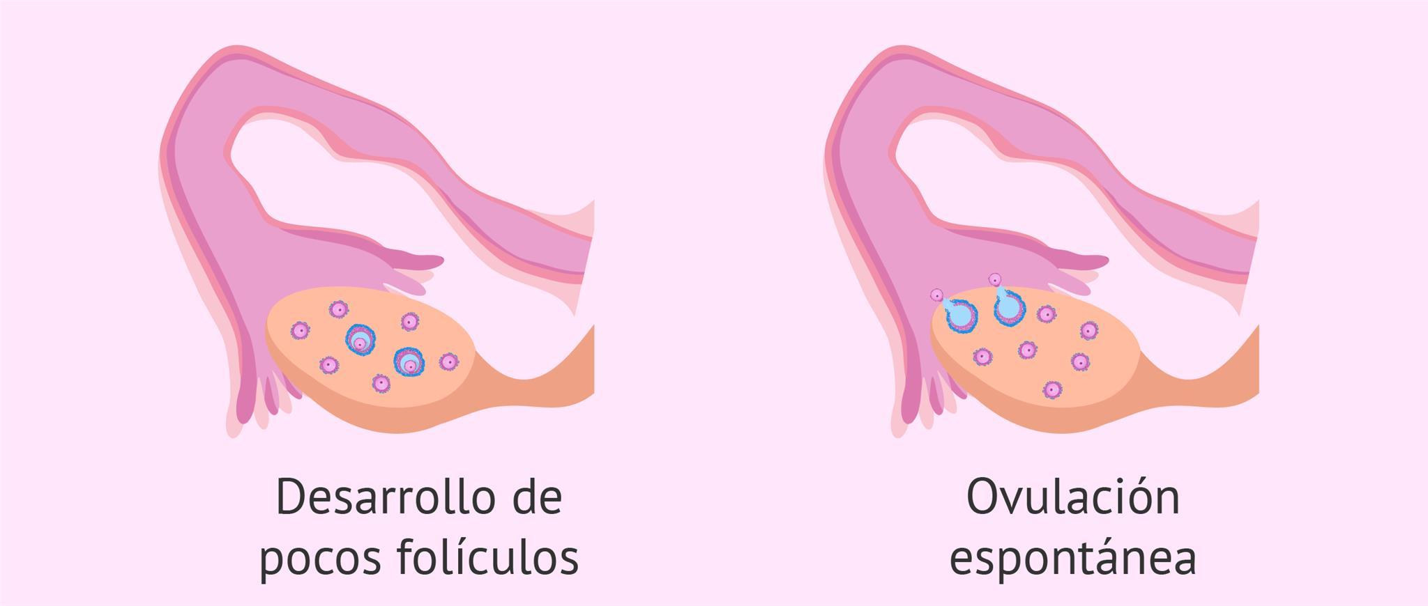 Mala respuesta a la estimulación ovárica