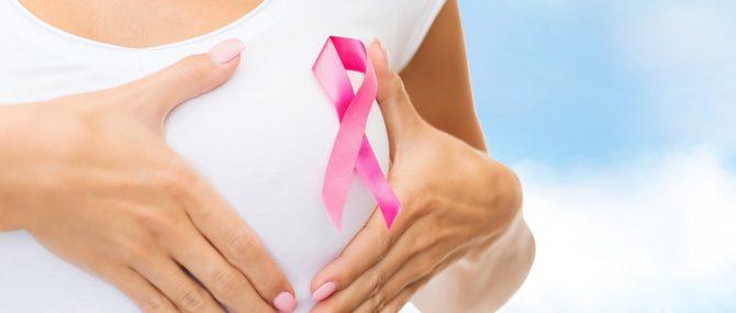 Imagen: Tumor en la mama