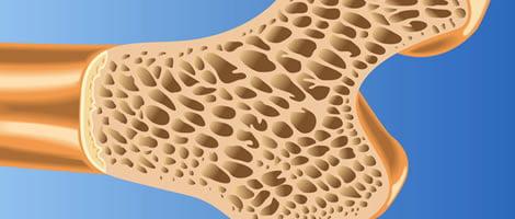 Mineralización ósea en prematuros