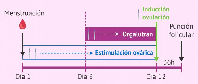 Imagen: Ciclo corto con Orgalutran
