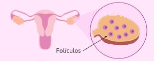 Folículos en el ovario
