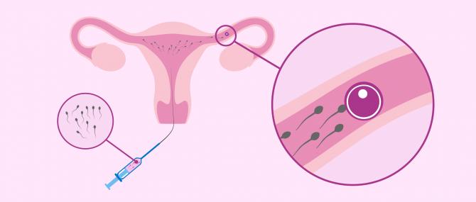 ¿Cómo se hace una inseminación artificial paso a paso?