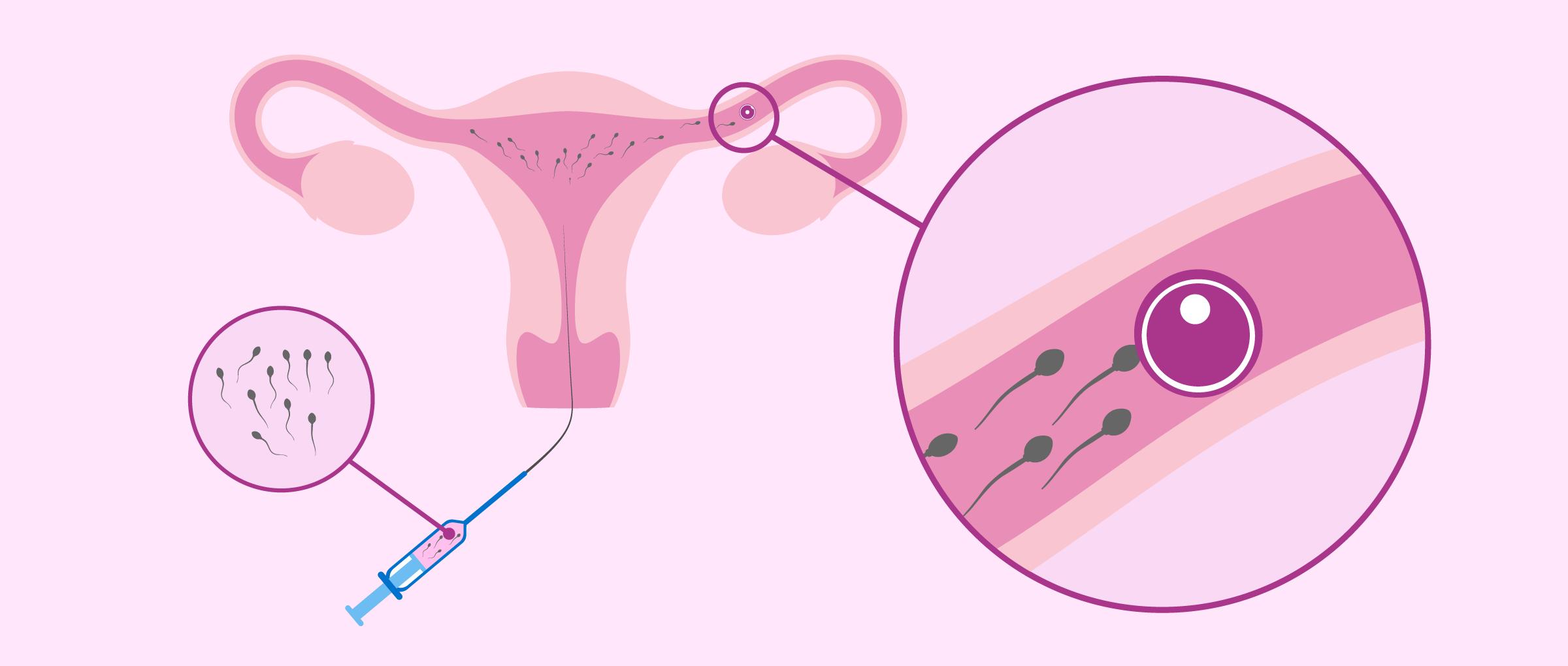 Proceso de inseminación artificial