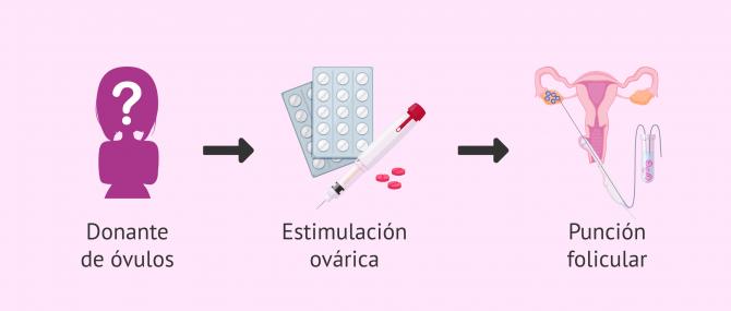 Imagen: Pasos para la donante en el proceso de ovodonación