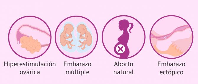 Imagen: Embarazo gemelar