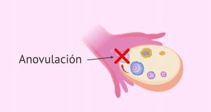 Alteraciones de la ovulación