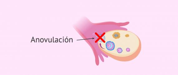 Imagen: Alteraciones de la ovulación