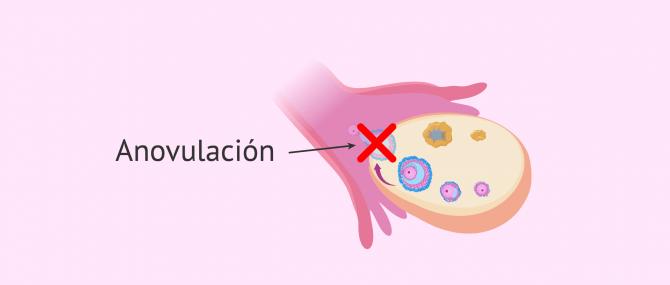 ¿Qué es la anovulación? – Causas, síntomas y tratamiento