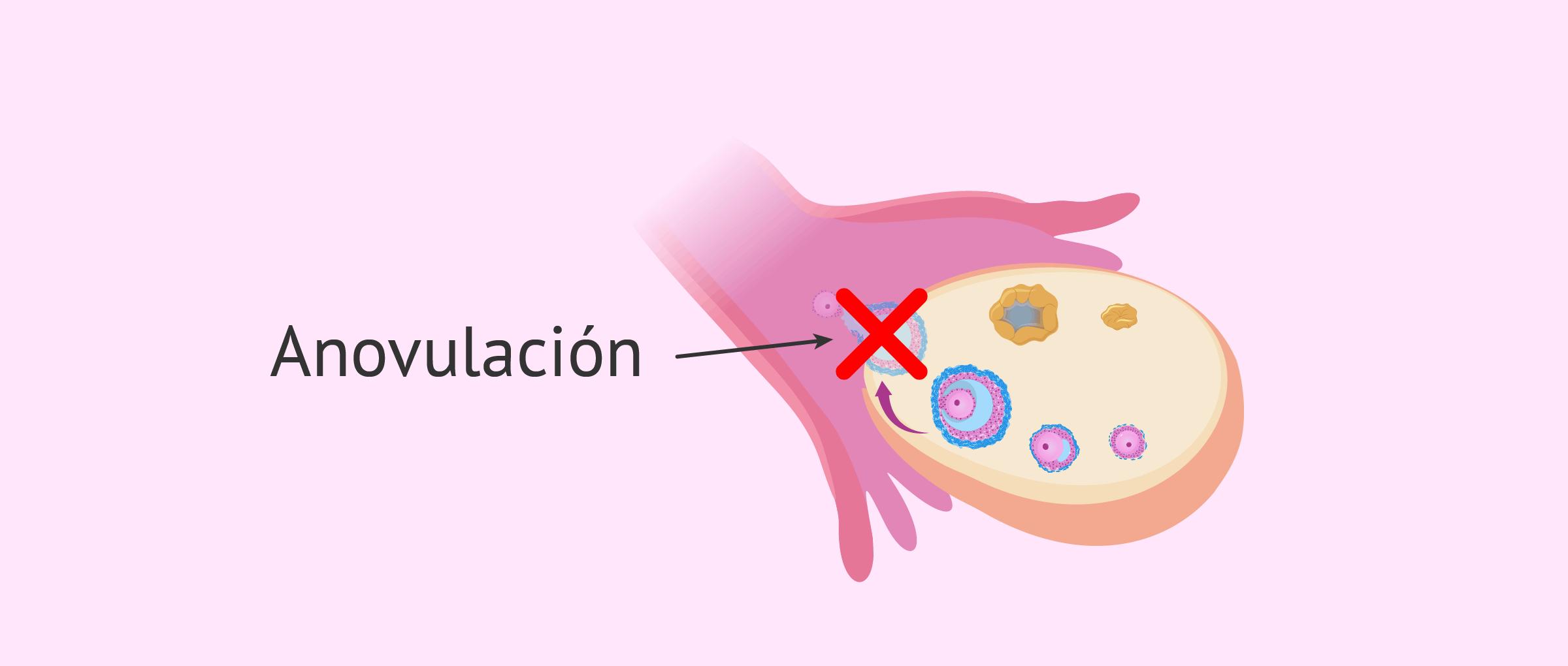 Qué es la anovulación? - Causas, síntomas y tratamiento